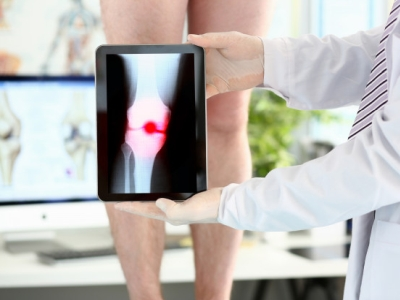 ortopedista joelho brasilia df - dr juliano francisco